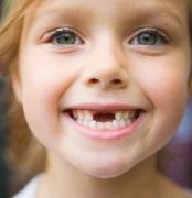Как уговорить ребенка полечить зубы