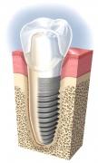 Имплантаты: как вырастить новые зубы